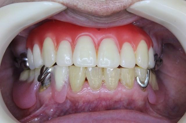 口腔内のロー義歯