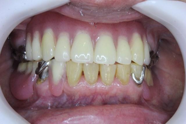 セットした入れ歯