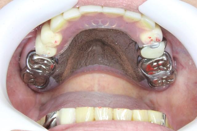 口腔内に装着した金属床義歯