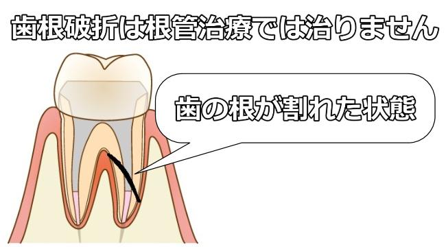 歯根破折は根管治療では治りません