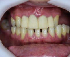 30年ぶりの歯科