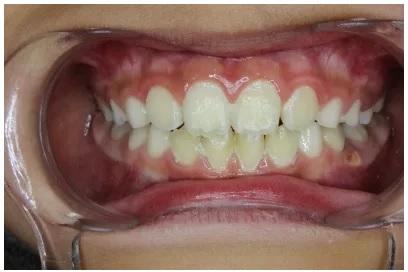 歯の写真 正面