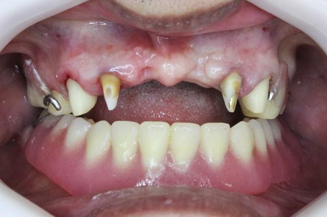 ブリッジ用に削った歯