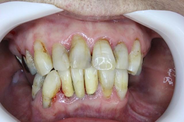 高齢者の歯