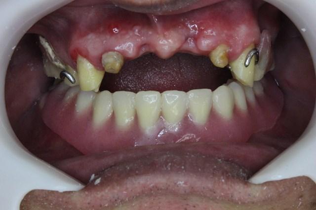 下顎の義歯セット