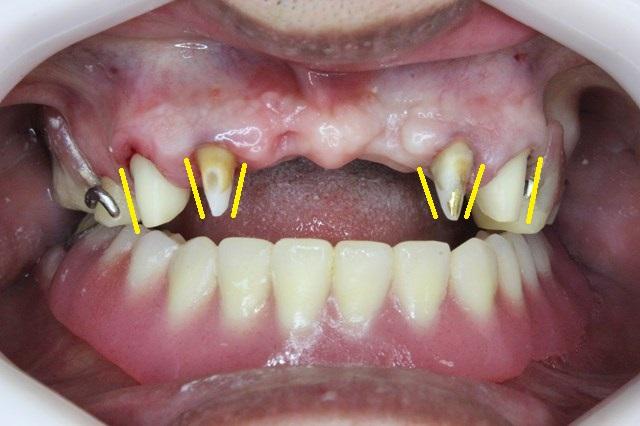 ブリッジ用に角度をそろえた歯