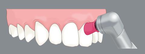 歯のクリーニングの機械