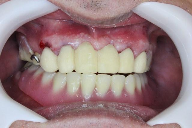 装着した仮歯