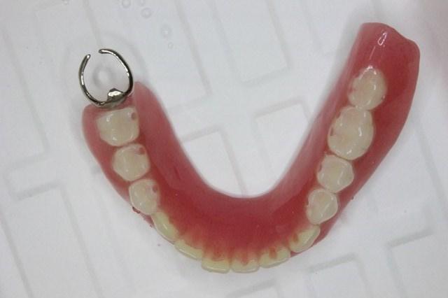 完成した下顎の部分入れ歯