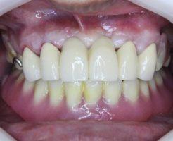 上顎はブリッジ、下顎は入れ歯
