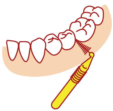 奥歯への歯間ブラシ