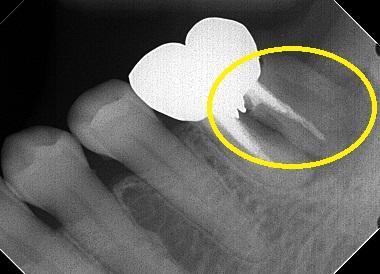 レントゲン上の破折歯