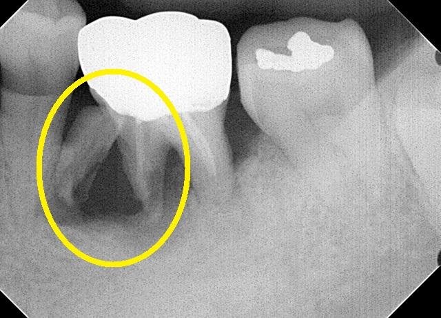 歯根破折した状態