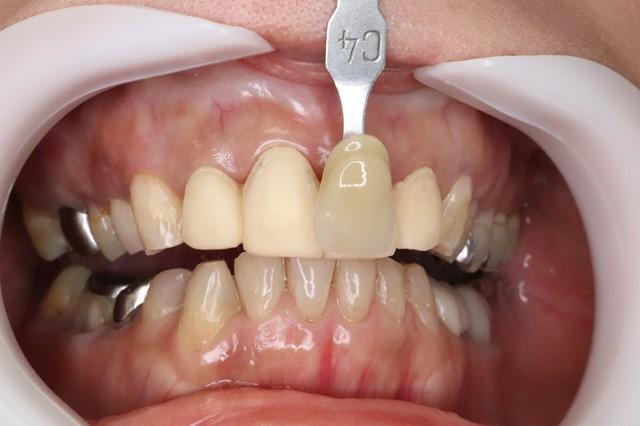 仮歯を入れてから、下の歯の色を記録