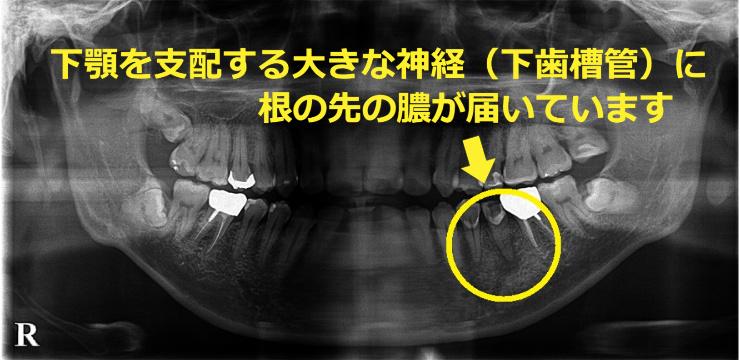 下歯槽管に膿が届いています