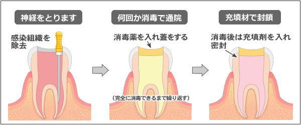 根の治療の進行図