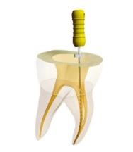 根管治療中の奥歯