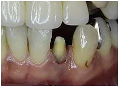 歯の形態を修正
