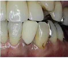 仮歯を装着
