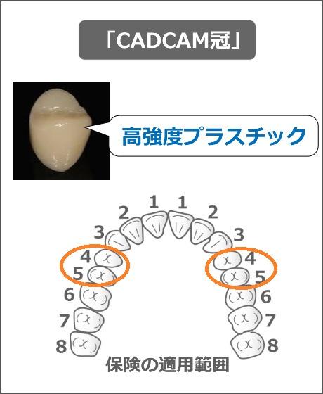 CADCAM冠の適用範囲