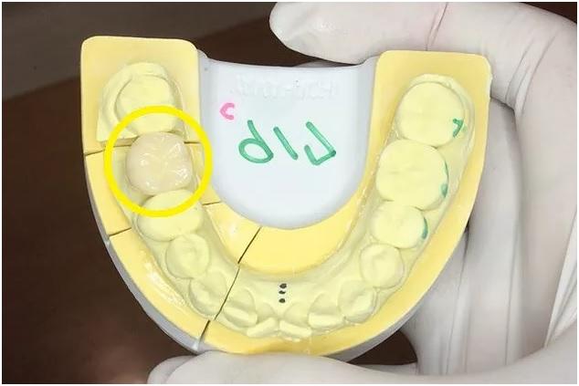 完成した大臼歯CADCAM冠