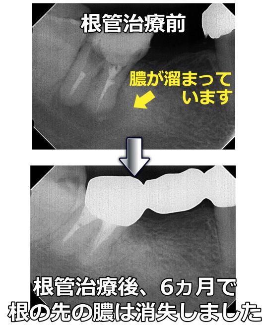 治療後6ヵ月で膿は消失