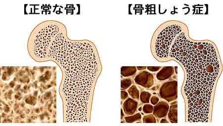 正常な骨と骨粗鬆症の骨