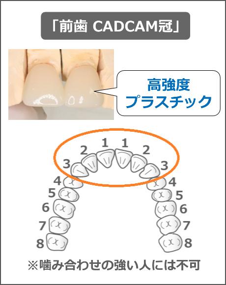 前歯CADCAM冠の適応範囲