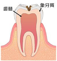 象牙質に届いた虫歯