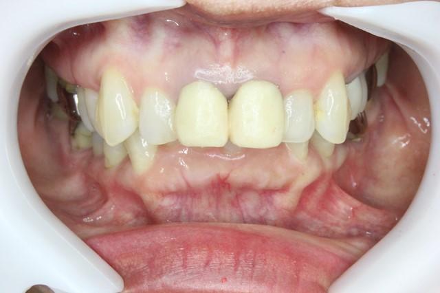 仮歯の状態