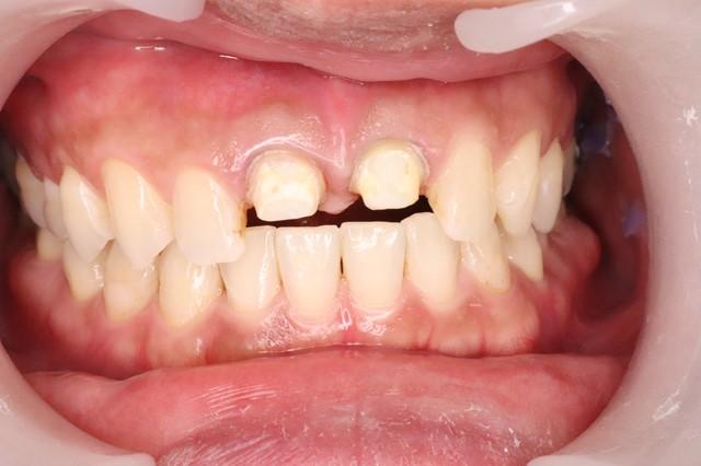 支台歯形成が終わったところ