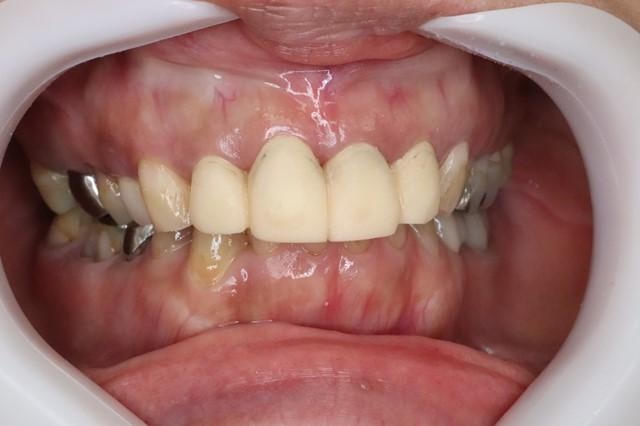 セラミック治療の仮歯をいれた状態