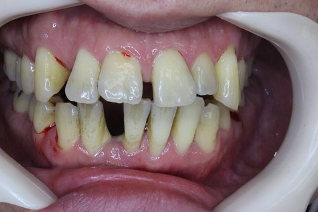 歯周検査後の出血
