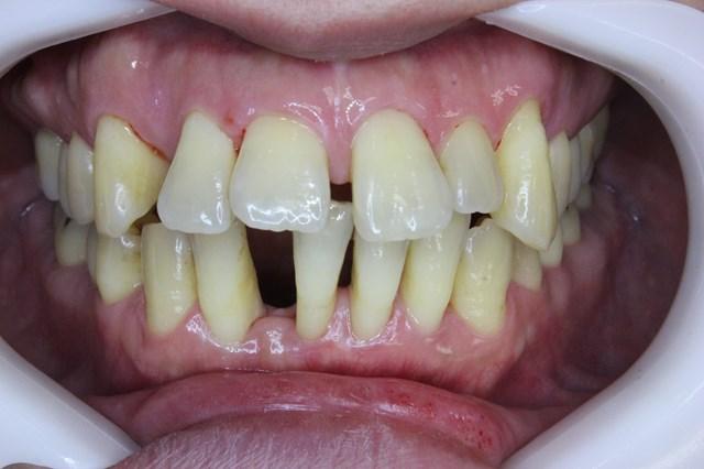 歯周基本治療後のハグキ