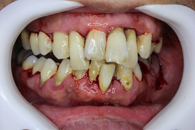 歯周検査後の重度歯周病
