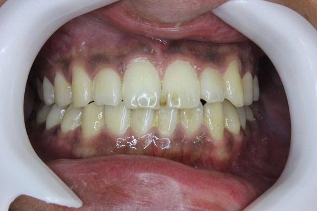 軽度の歯石がついた口の中