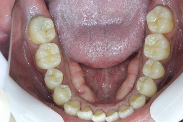 歯石除去・クリーニング後の下顎