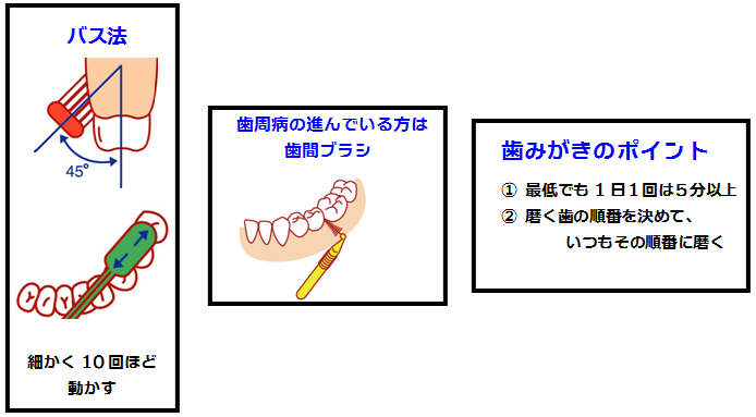 バス法と歯間ブラシと歯磨きのポイント