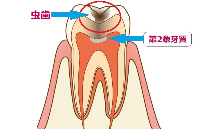 第2象牙質
