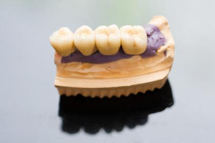 奥歯のセラミック模型