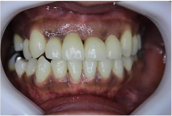 前歯部のセラミック