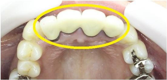 前歯のセラミック 咬合面観