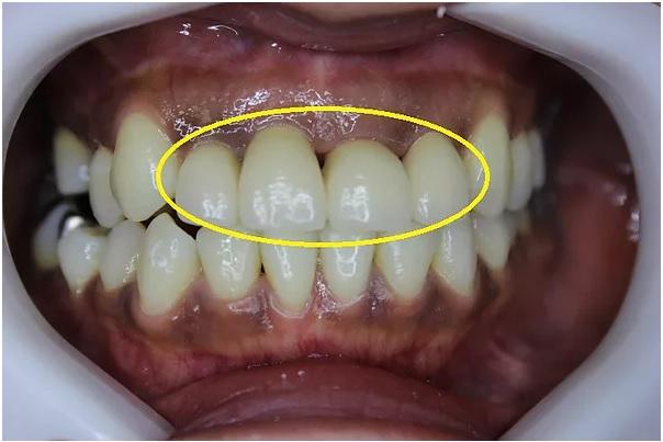 前歯のセラミック 正面観