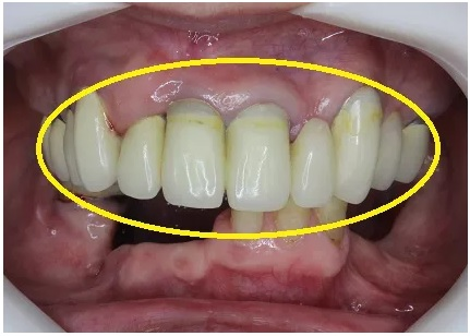 前歯のセラミック 術前
