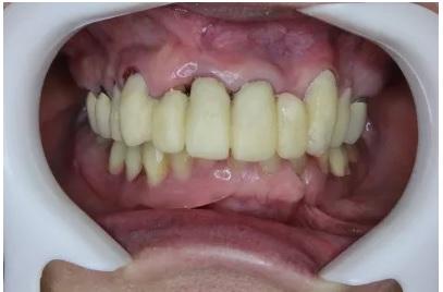 調整前の長い仮歯