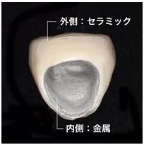 メタルボンドの構造