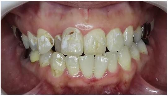 少数歯セラミック 術前
