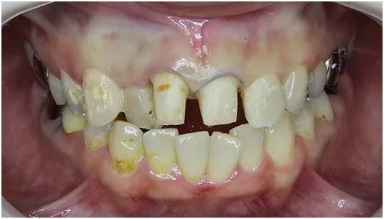 セラミック 歯を削った後