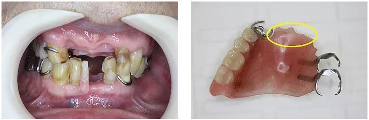 壊れた部分入れ歯