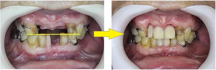 応急修理した入れ歯